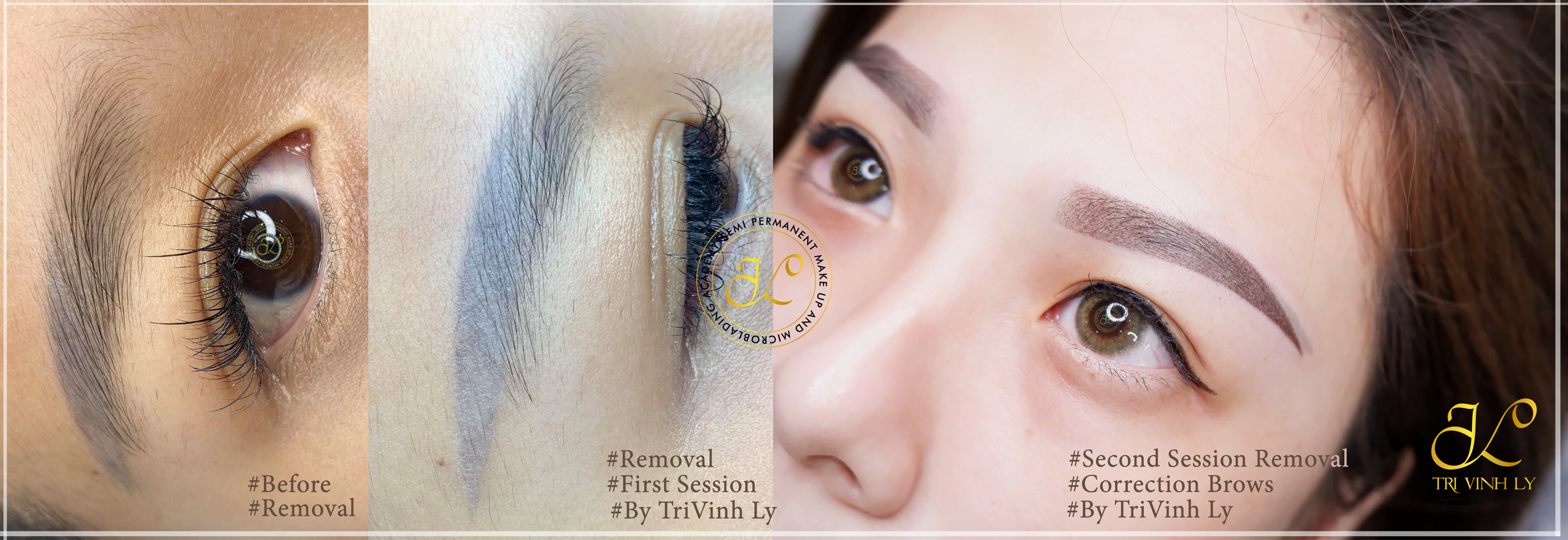 Removal 2 session - Correction Brows - TVL PMU ACADEMY - Trivinh Ly Instructor - tvlpmuacademy.us